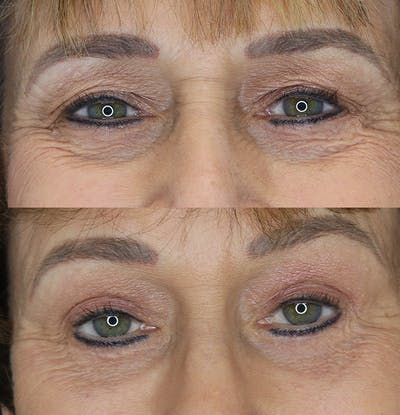 Eyelid Surgery Gallery - Patient 53082735 - Image 2