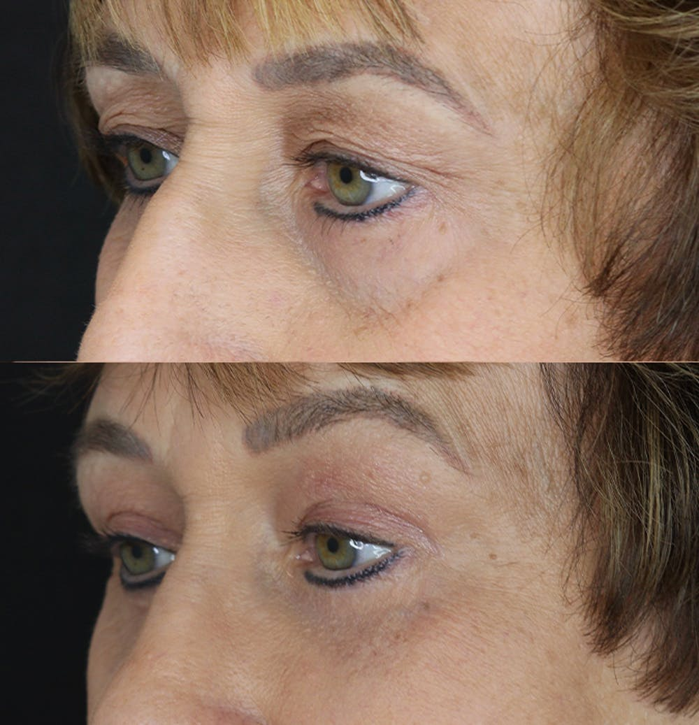 Eyelid Surgery Gallery - Patient 53082735 - Image 3