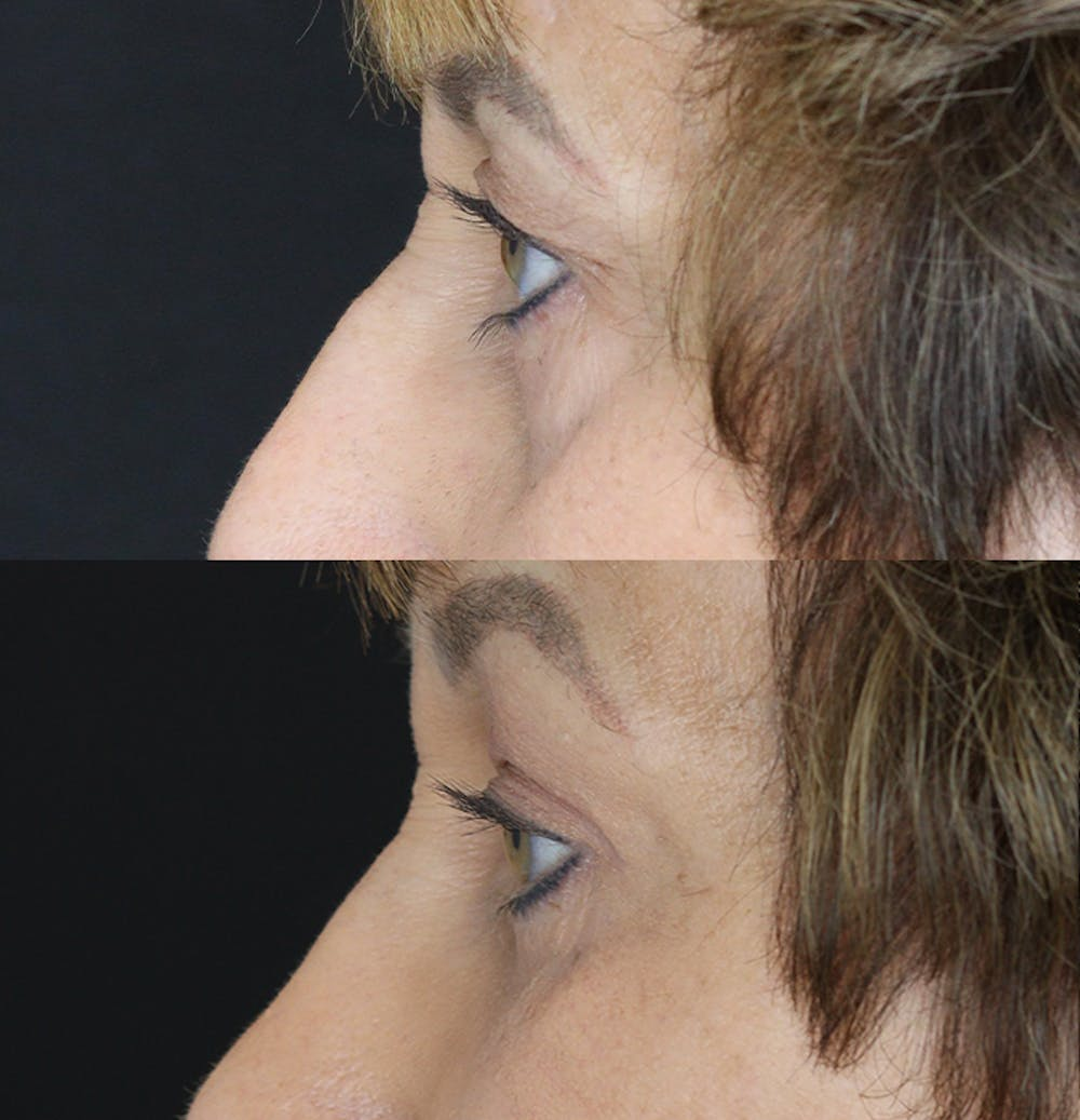 Eyelid Surgery Gallery - Patient 53082735 - Image 4