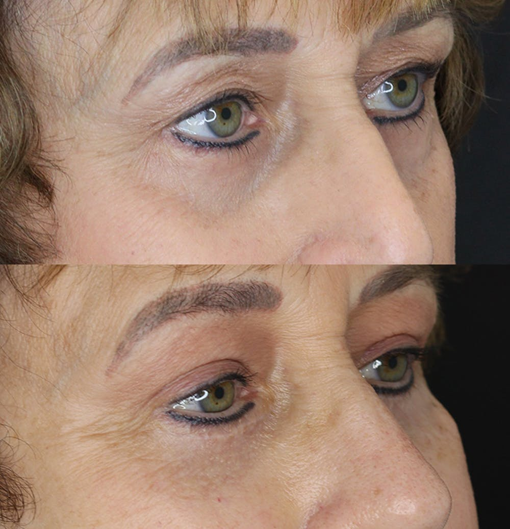 Eyelid Surgery Gallery - Patient 53082735 - Image 5