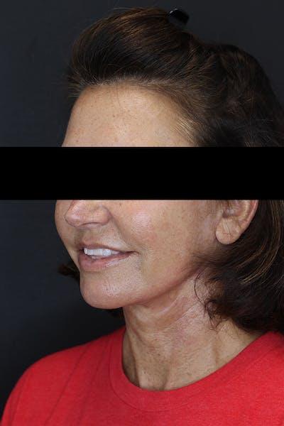 Facelift & Necklift Gallery - Patient 53083078 - Image 4