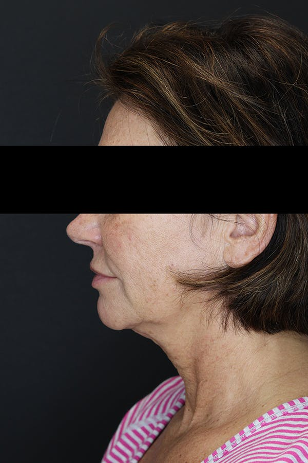 Facelift & Necklift Gallery - Patient 53083078 - Image 5