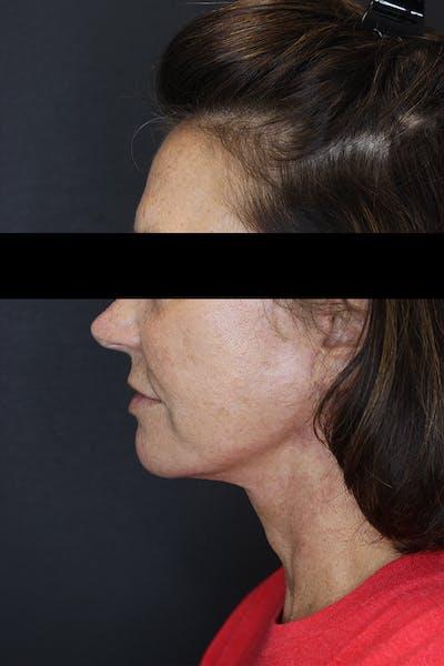 Facelift & Necklift Gallery - Patient 53083078 - Image 6