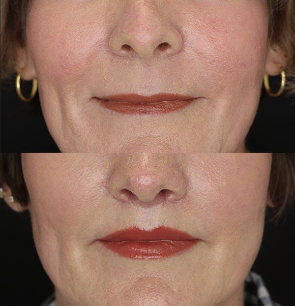 Lip Lift Gallery - Patient 53083551 - Image 1