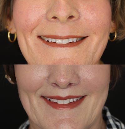 Lip Lift Gallery - Patient 53083551 - Image 2