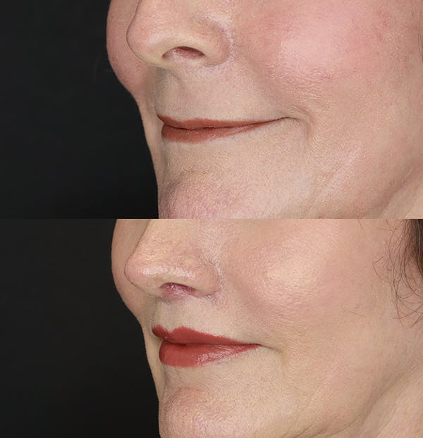 Lip Lift Gallery - Patient 53083551 - Image 3