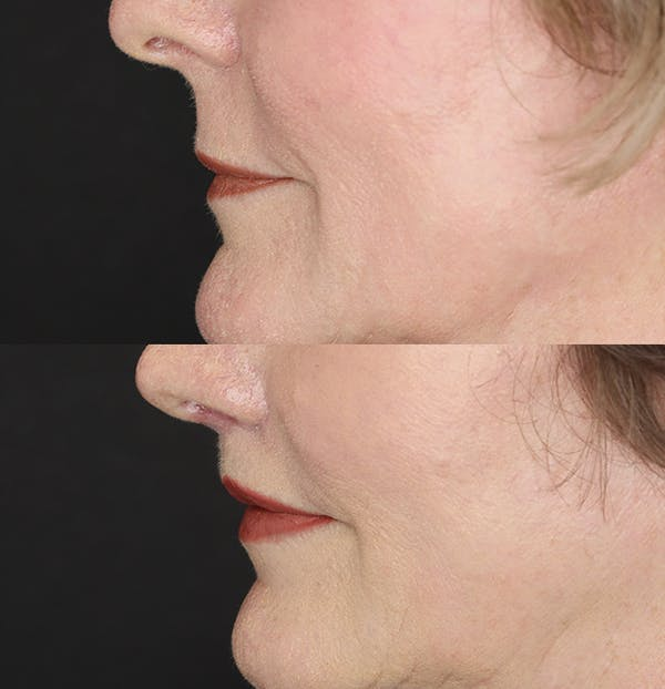 Lip Lift Gallery - Patient 53083551 - Image 4