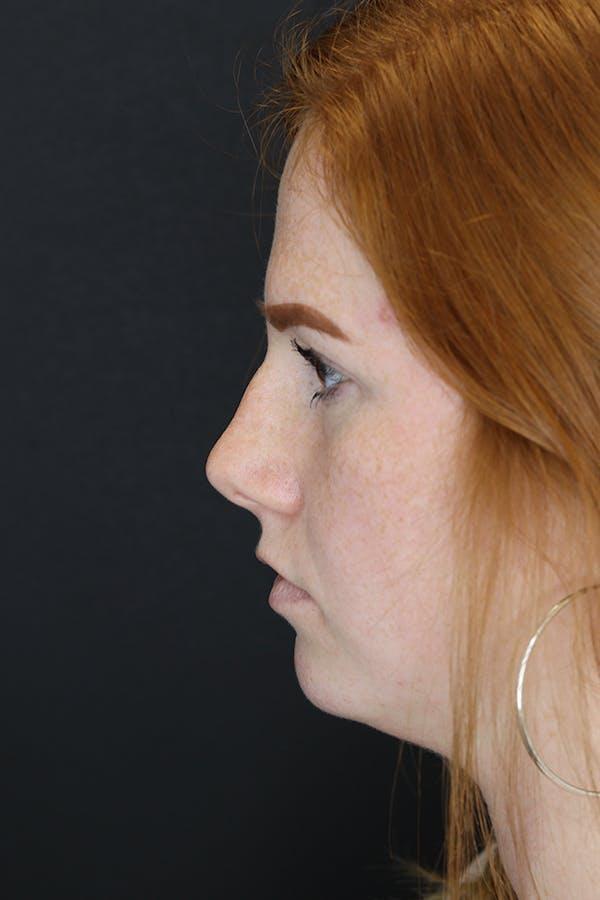 Rhinoplasty Gallery - Patient 53084379 - Image 7