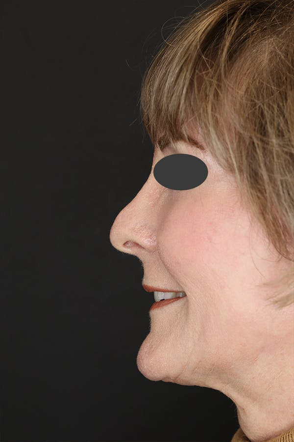Revision Rhinoplasty Gallery - Patient 53084202 - Image 3