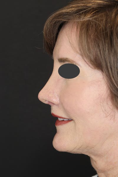 Revision Rhinoplasty Gallery - Patient 53084202 - Image 4