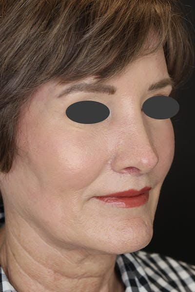 Revision Rhinoplasty Gallery - Patient 53084202 - Image 6