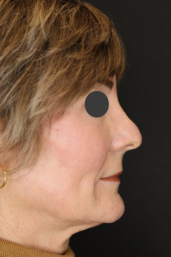 Revision Rhinoplasty Gallery - Patient 53084202 - Image 7