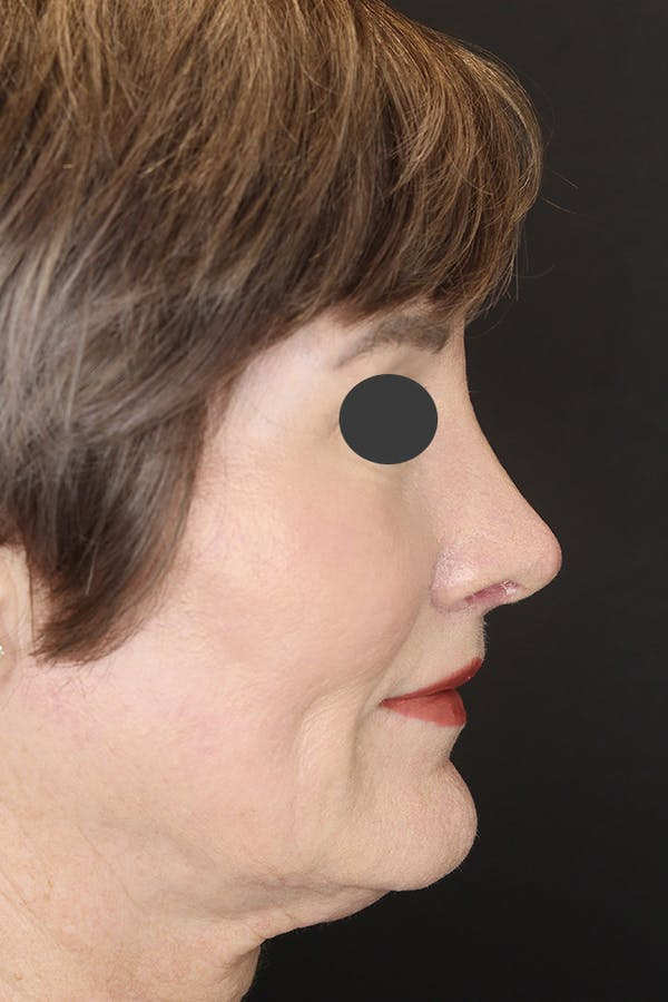 Revision Rhinoplasty Gallery - Patient 53084202 - Image 8