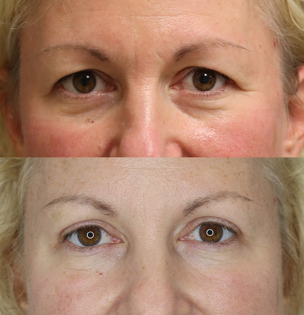 Eyelid Surgery Gallery - Patient 57007569 - Image 1