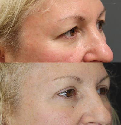 Eyelid Surgery Gallery - Patient 57007569 - Image 2
