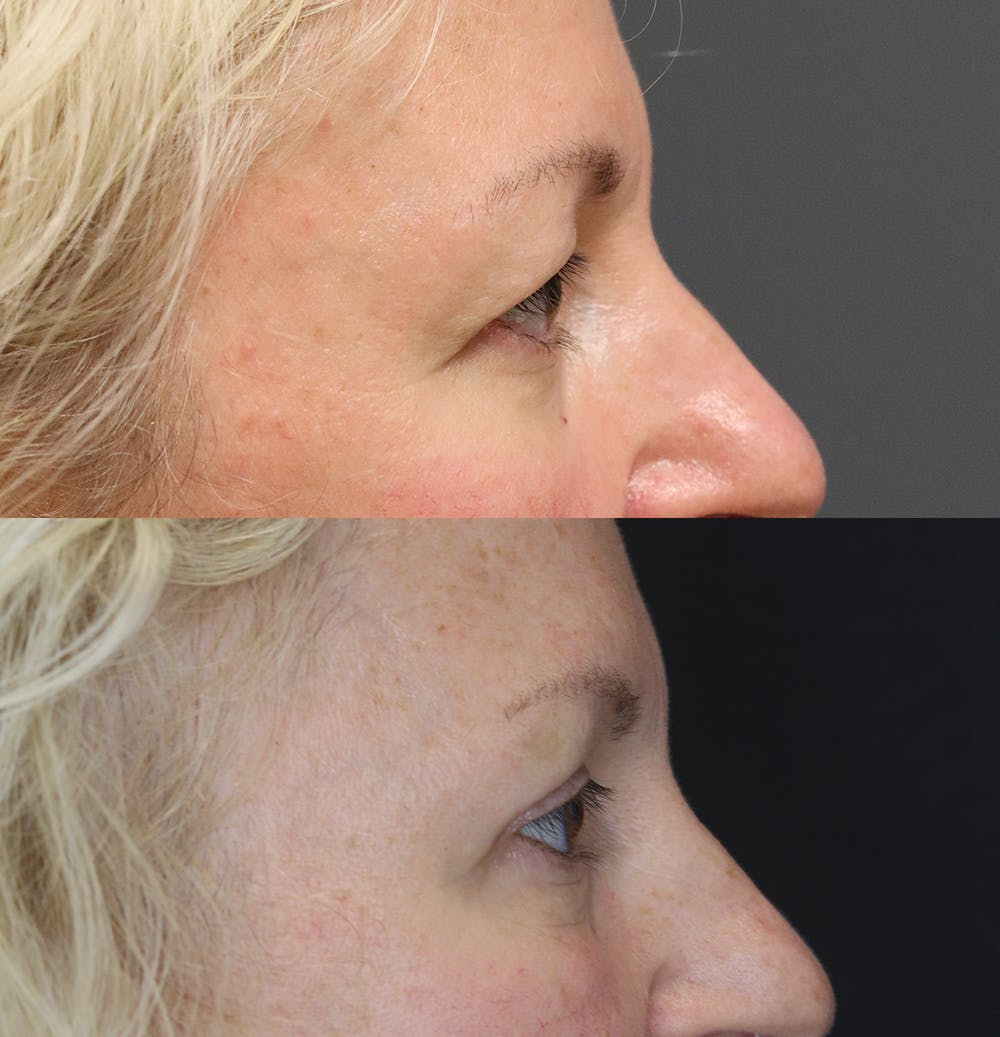 Eyelid Surgery Gallery - Patient 57007569 - Image 3
