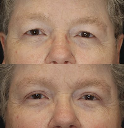 Eyelid Surgery Gallery - Patient 57007570 - Image 1