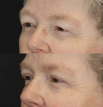 Eyelid Surgery Gallery - Patient 57007570 - Image 2