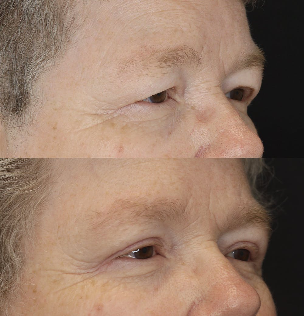 Eyelid Surgery Gallery - Patient 57007570 - Image 3