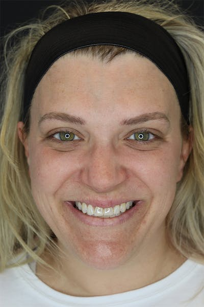 Facial Fillers Gallery - Patient 57007692 - Image 1
