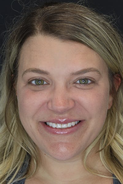 Facial Fillers Gallery - Patient 57007692 - Image 2