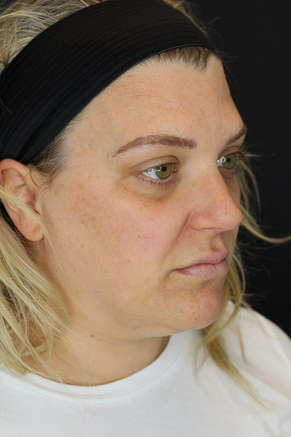 Facial Fillers Gallery - Patient 57007692 - Image 5