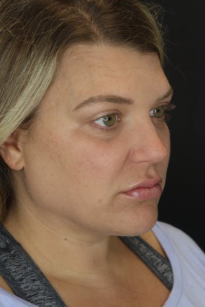 Facial Fillers Gallery - Patient 57007692 - Image 6