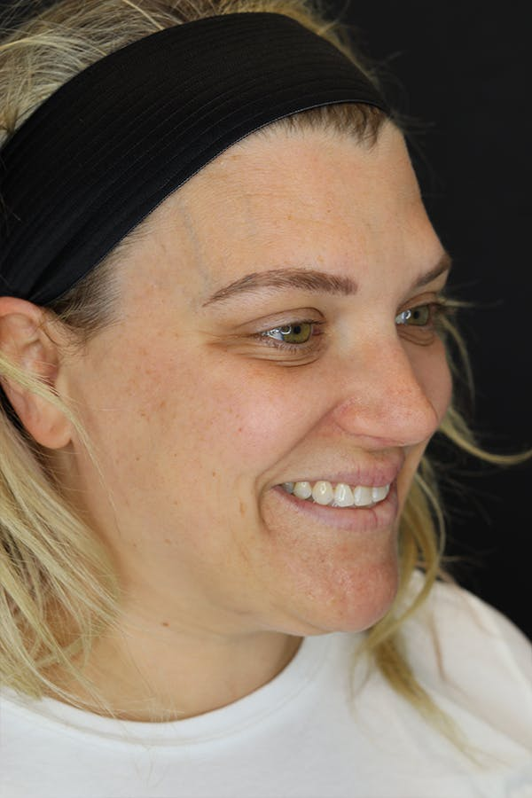 Facial Fillers Gallery - Patient 57007692 - Image 7