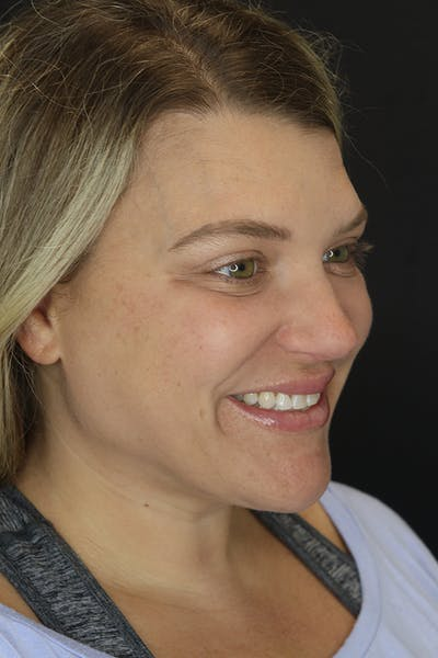 Facial Fillers Gallery - Patient 57007692 - Image 8