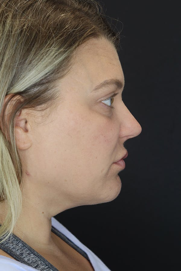 Facial Fillers Gallery - Patient 57007692 - Image 10