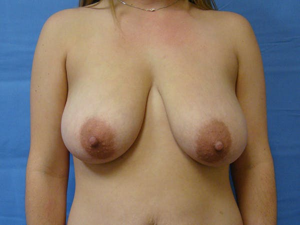 Breast Augmentation Gallery - Patient 61446999 - Image 1