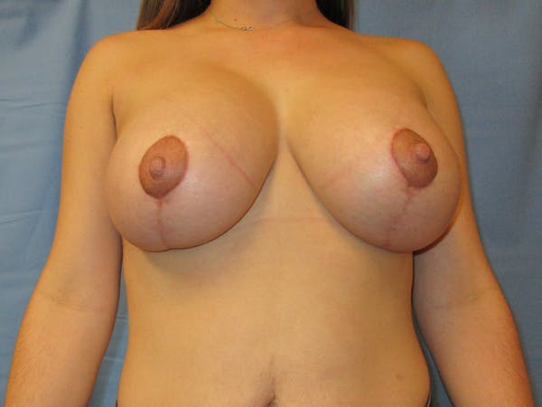 Breast Augmentation Gallery - Patient 61446999 - Image 2