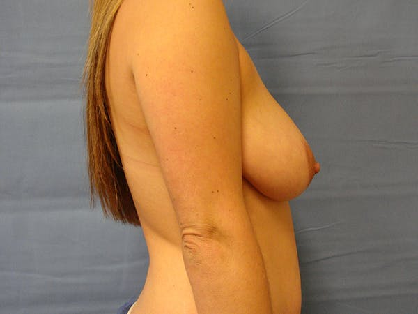 Breast Augmentation Gallery - Patient 61446999 - Image 3