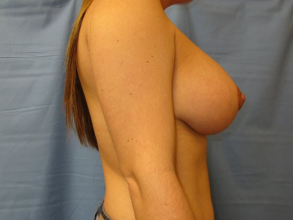 Breast Augmentation Gallery - Patient 61446999 - Image 4