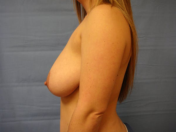 Breast Augmentation Gallery - Patient 61446999 - Image 5