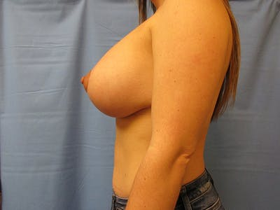 Breast Augmentation Gallery - Patient 61446999 - Image 6