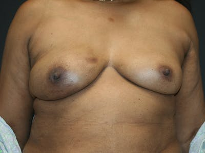 Breast Reconstruction Gallery - Patient 61447016 - Image 1
