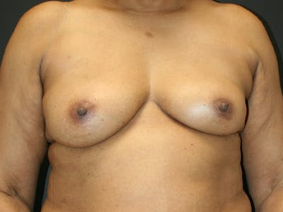 Breast Reconstruction Gallery - Patient 61447016 - Image 2