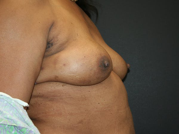 Breast Reconstruction Gallery - Patient 61447016 - Image 3
