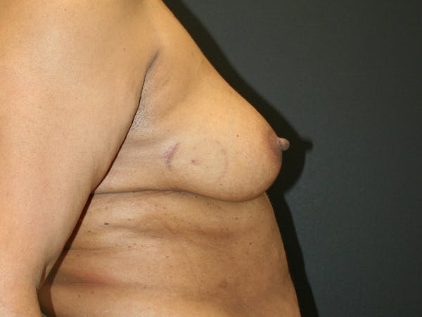 Breast Reconstruction Gallery - Patient 61447016 - Image 4