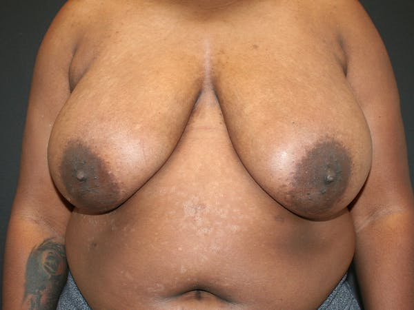 Breast Reduction Gallery - Patient 61447065 - Image 1