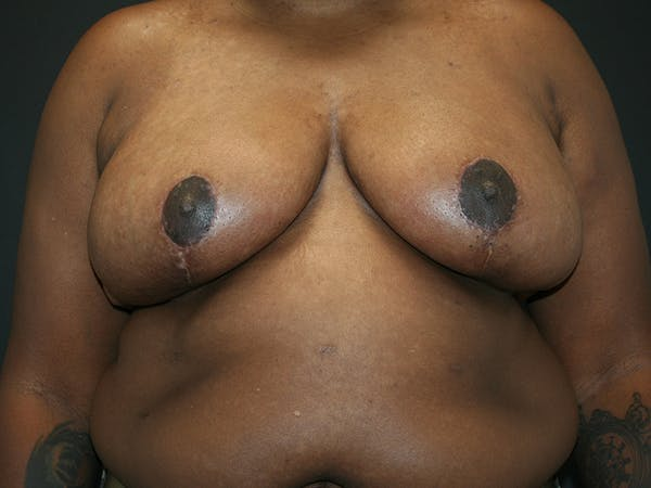 Breast Reduction Gallery - Patient 61447065 - Image 2