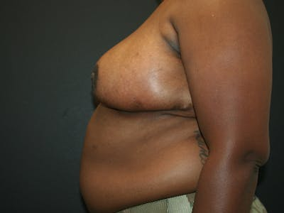 Breast Reduction Gallery - Patient 61447065 - Image 4
