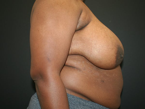 Breast Reduction Gallery - Patient 61447065 - Image 5
