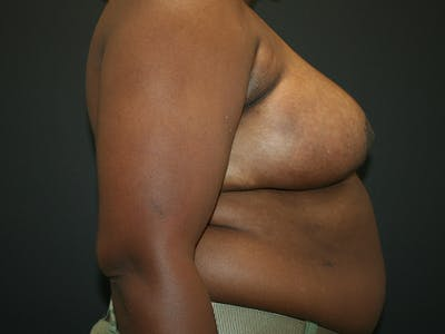 Breast Reduction Gallery - Patient 61447065 - Image 6