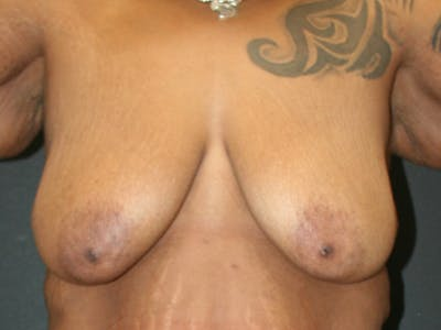 Breast Reduction Gallery - Patient 61447066 - Image 1