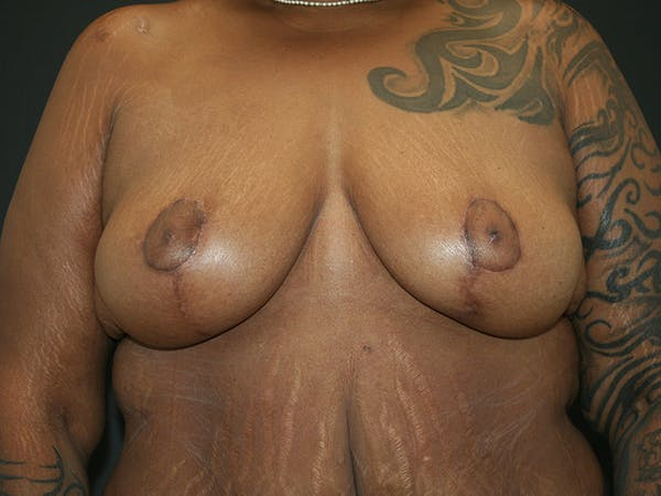 Breast Reduction Gallery - Patient 61447066 - Image 2