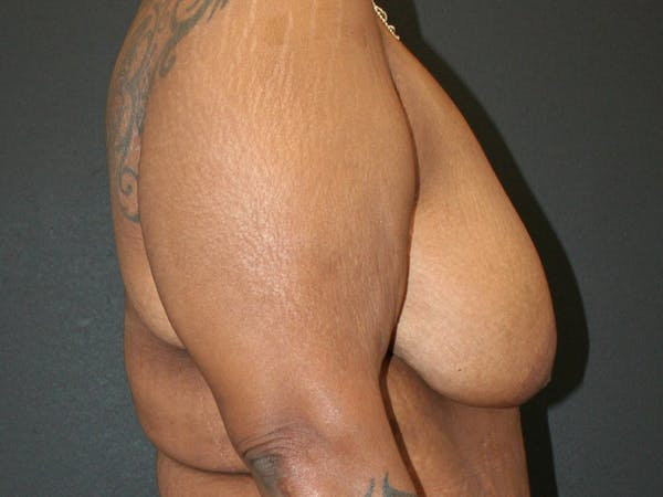 Breast Reduction Gallery - Patient 61447066 - Image 3