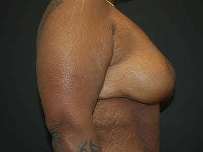 Breast Reduction Gallery - Patient 61447066 - Image 4