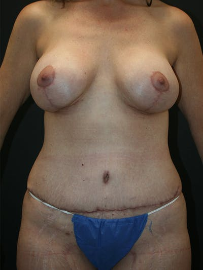 Massive Weight Loss Gallery - Patient 61782425 - Image 2